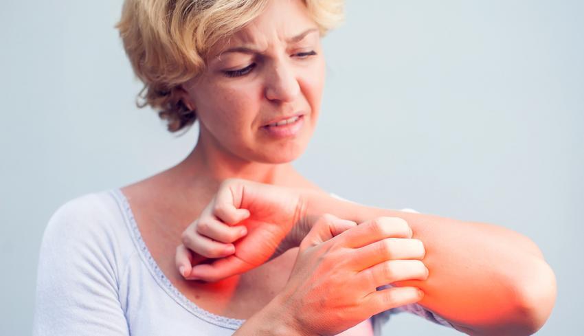 milyen kenőcsök kezelésére pikkelysömör a kezeken vörös foltok a bőrön viszketnek és sütnek