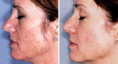 hogyan lehet eltávolítani az öregedési foltokat pikkelysömörrel annál jobban kezeli a pikkelysömör