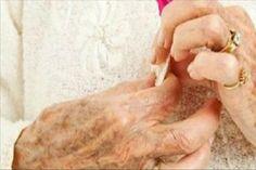 Pikkelysömör tünetei, okai, jelei, megelőzése - Pikkelysömör kezelése, gyógyítása - kriko.hu