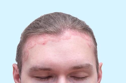 pikkelysömör fotó a fej kezelse erős vörös foltok a kezeken mi ez