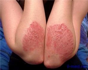 Physiotherapy az arthritis által okozott Psoriasis