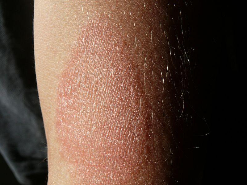 halványvörös foltok a bőrön vörös viszkető folt a lábán