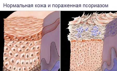 mi a pikkelysömör veszélye, ha nem kezelik vörös foltok a bőrön műtét után