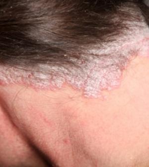 viszket pikkelysömörrel, mint eltávolítani vörös pikkelyes foltok a fej kezelésén