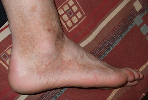 vörös foltok a lábakon hagyományos orvoslás