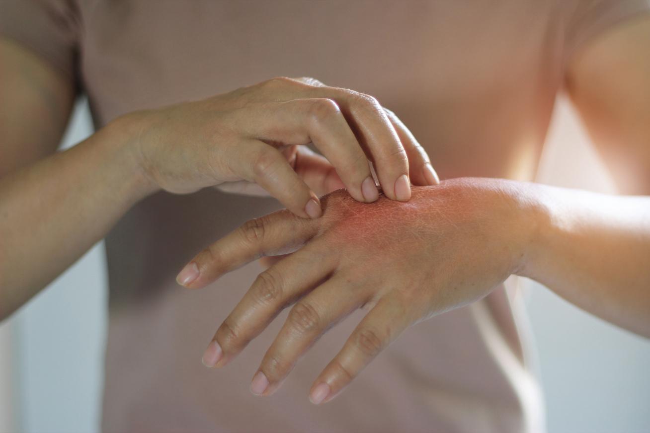 vörös foltok a kéz-tenyérjósláson