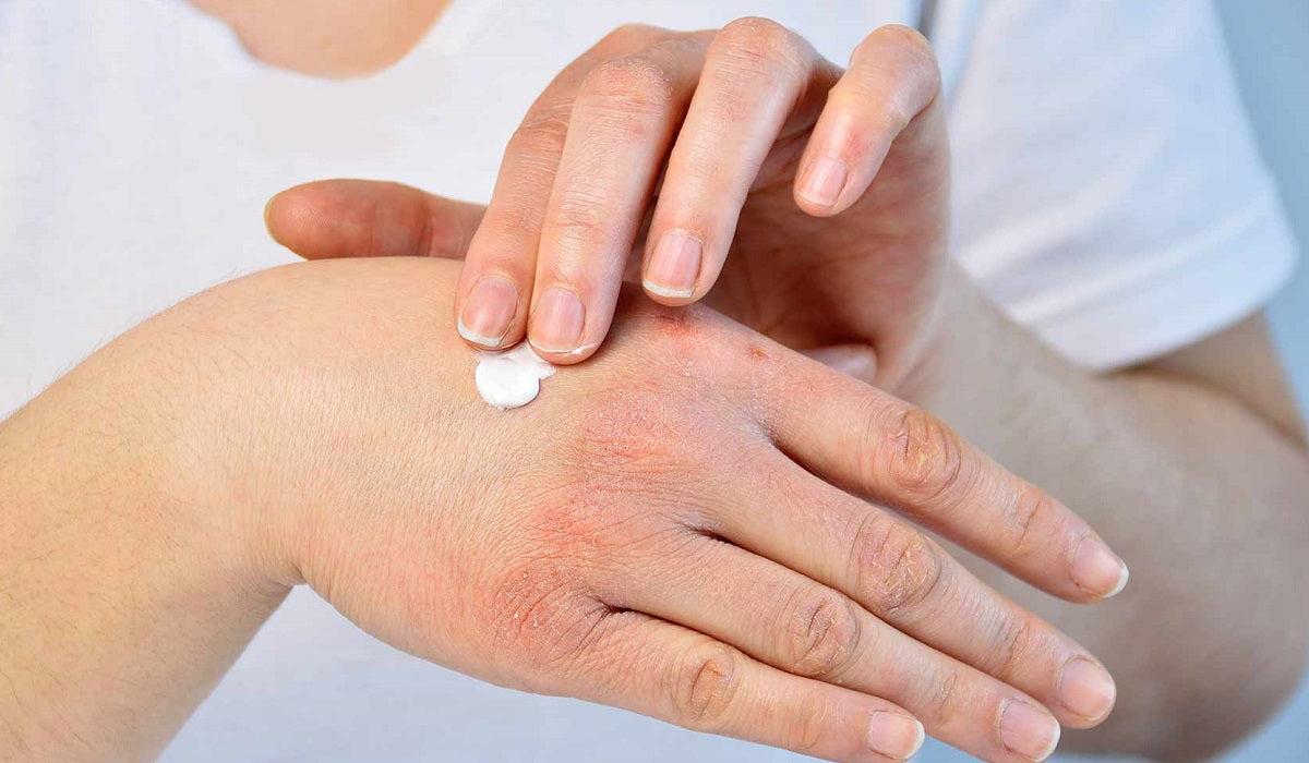 pikkelysömör kezelése ingyenes a pikkelysmr kezdete s a kezels
