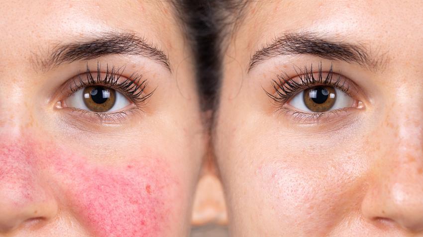 hidegben az arcot vörös foltok borítják