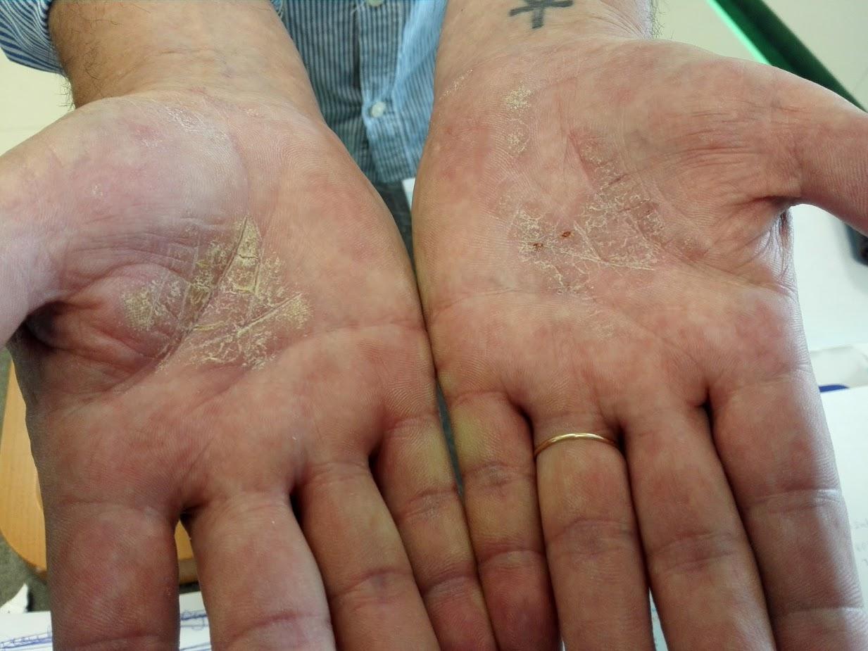 vörös foltok viszketnek a tenyerén és a kezén pikkelysömör kezelése hirudoterápiával