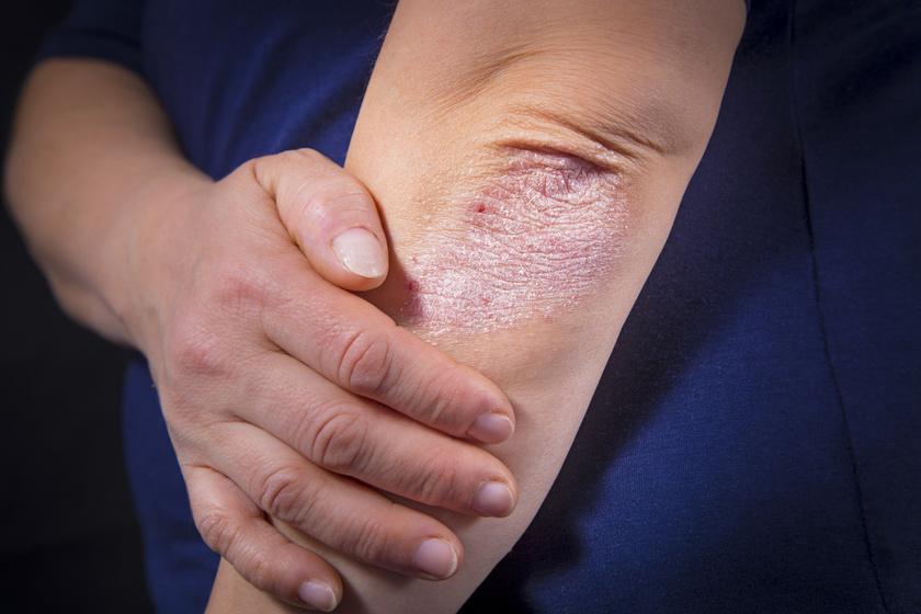 hogyan lehet enyhíteni a gyulladást a pikkelysömörben vörös foltok az arcon betegség alatt