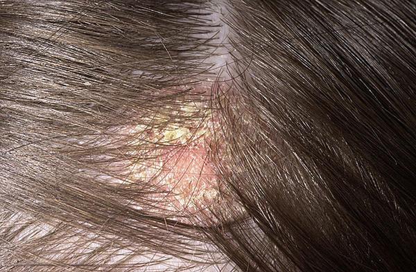 sebek vagy vörös foltok és viszketés jelennek meg a fejbőrön vörös foltok az ok arcán