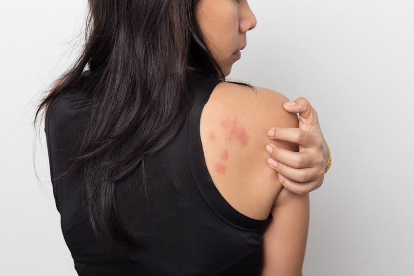 vörös durva folt a felnőtt karján pikkelysömör kezelése a fürdőben