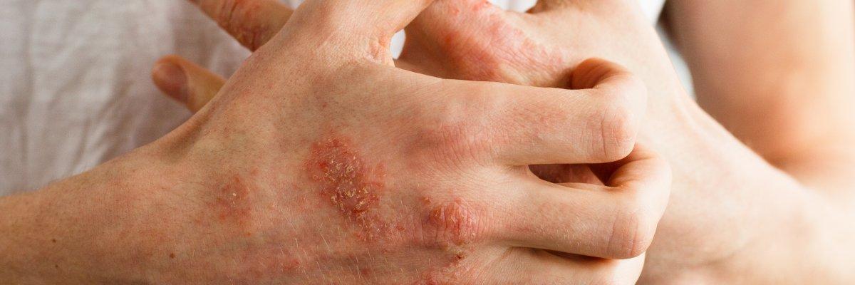 Psoriasis tünetek fotó