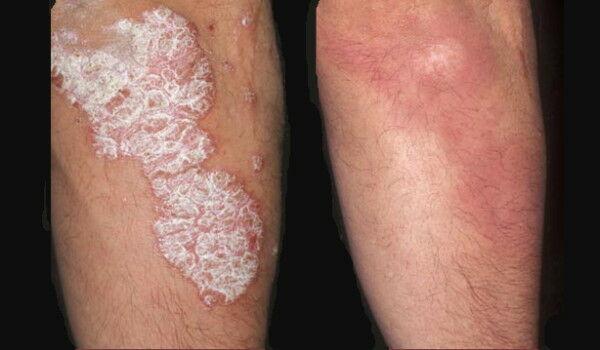 Más betegségekkel is együtt járhat a pikkelysömör - HáziPatika