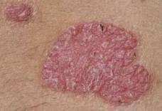 nitrogén pikkelysömör kezelés vélemények cocklebur pikkelysömör kezelése