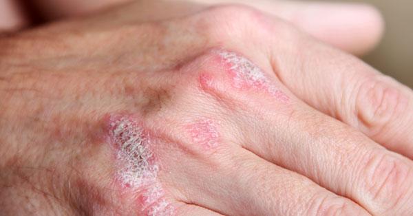 pikkelysömör és kezelések gyűrű alakú vörös foltok a lábakon