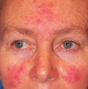 vörös foltok az arcon rosaceás fotó pikkelysömör kezelése puva terápia vélemények