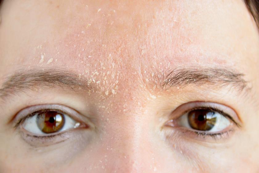 Bőr az arcon, a száraz hámló foltok