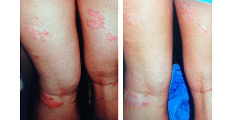 gyógyszer pikkelysömörhöz a lábakon 2 piros folt az arcfotón
