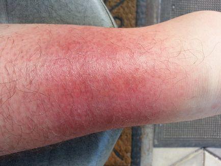 kiütés a lábakon vörös foltok formájában viszketés nélkül
