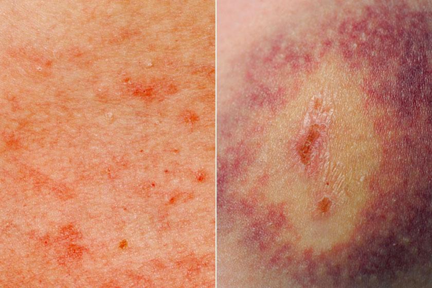 vörös foltok a lábak között a nők fotóján vörös foltok a sertésekben a bőrön