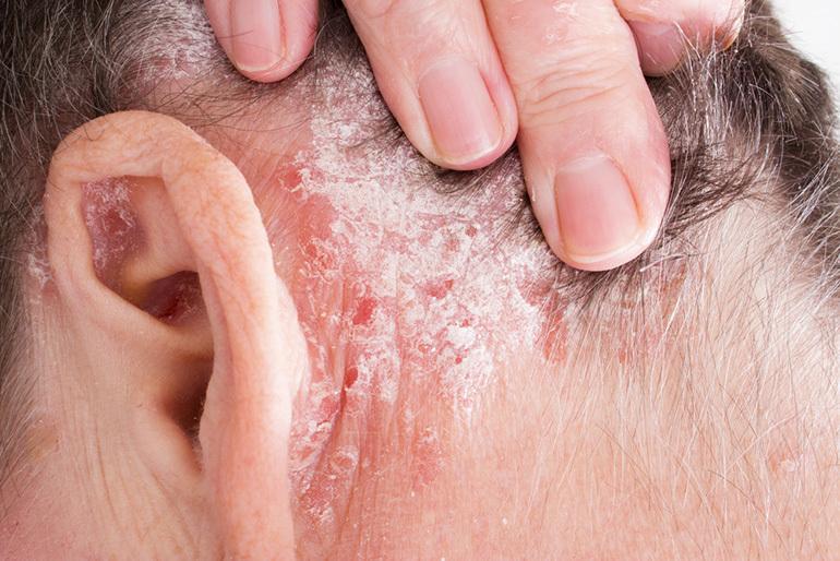 pikkelysömör kezelés alternatív módszer vörös folt a görények bőrén