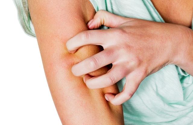 Organikus szappan pikkelysömör, ekcéma és problémás bőr kezelésére saját tinktúrával | kriko.hu