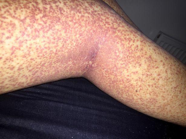 piros egyenetlen folt a lábán