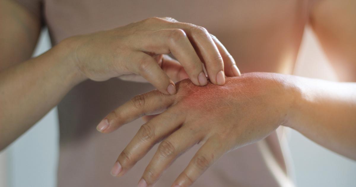 mit kell tenni, ha piros foltok jelennek meg a kezeken