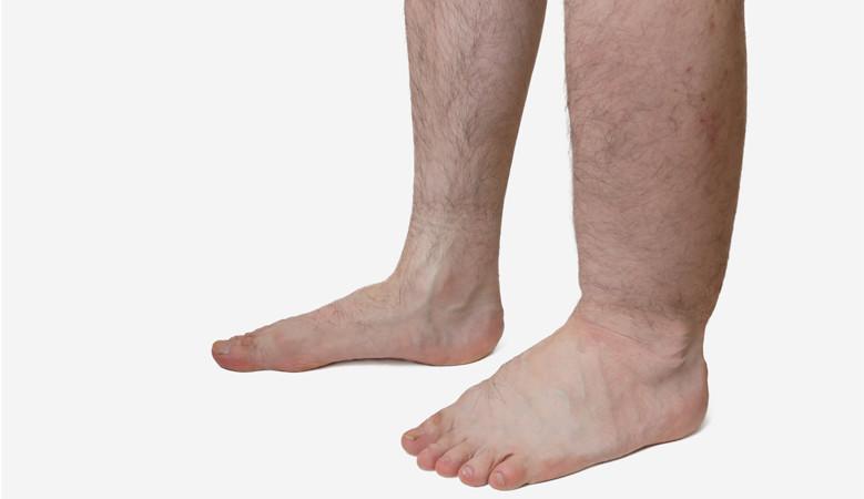 a lábak duzzadtak és vörös foltok jelentek meg fotó