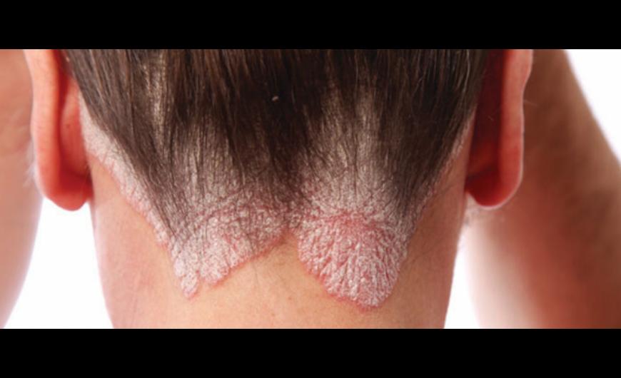 terápiás kezelés a pikkelysömörhöz