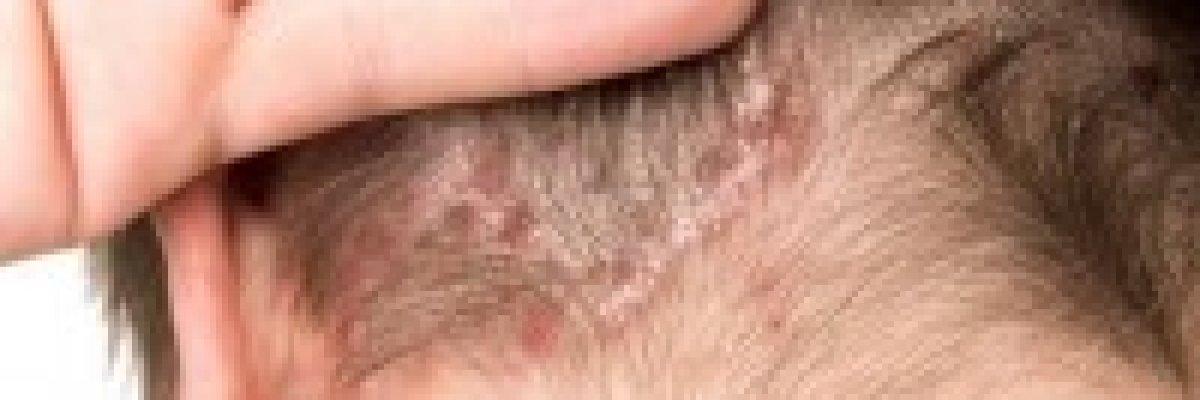 mit kell kezelni a pikkelysmrrel enterosgel a pikkelysmr kezelsben