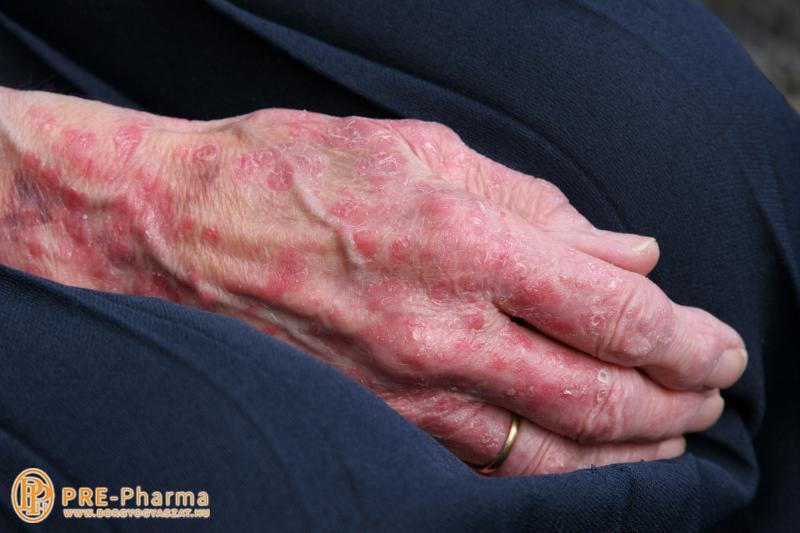 pikkelysömör kezelése elérhető eszközökkel vörös foltok otthoni kezelése az arcon
