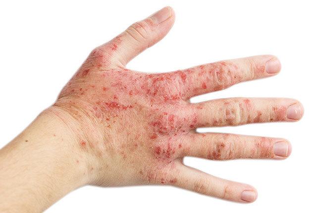 vörös folt ég a kéz bőrén