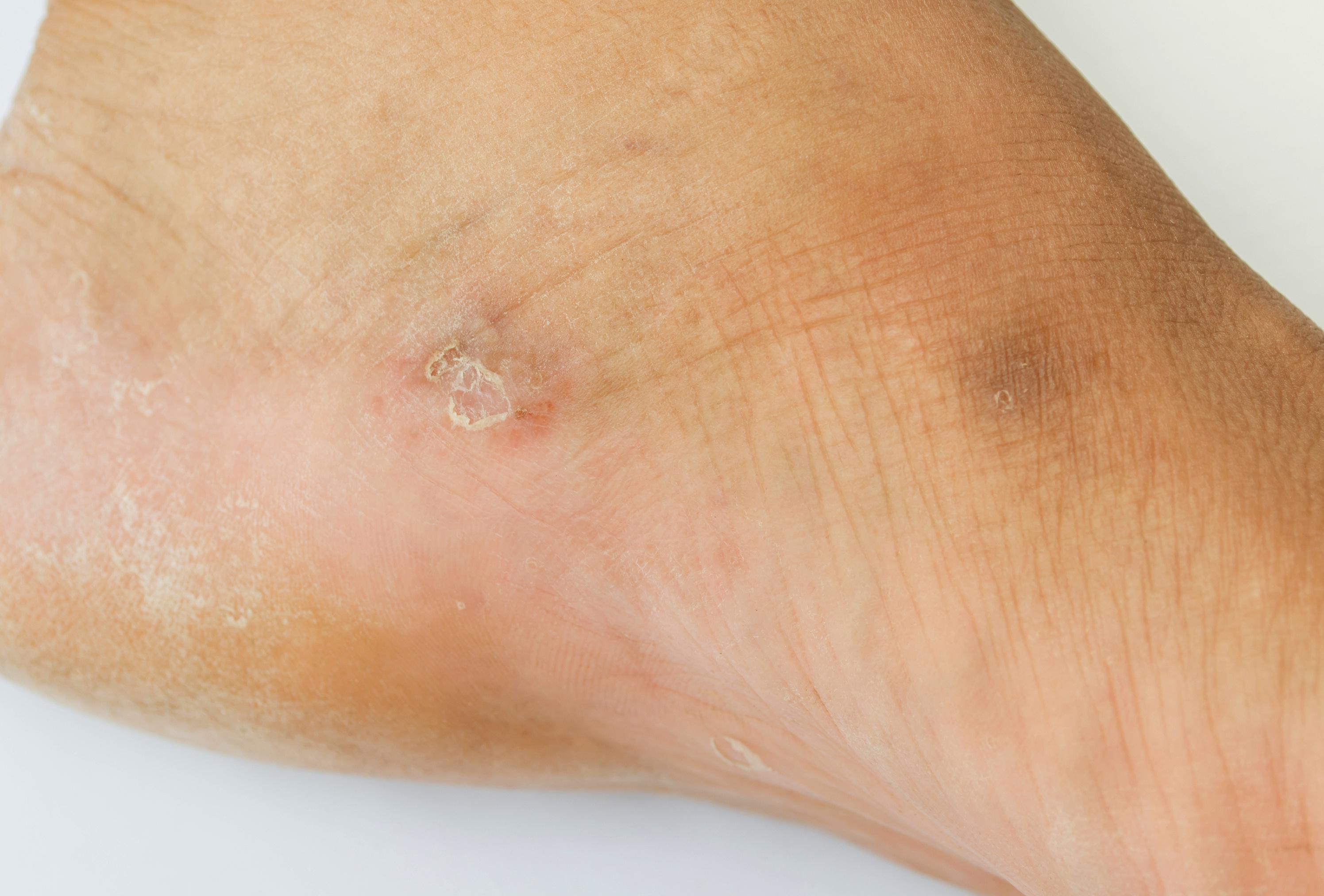a lábán vörös durva folt viszket