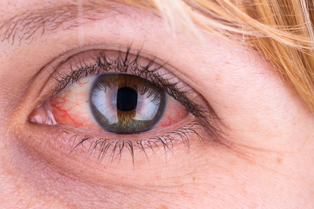 a szem közelében vörös folt hámlik le
