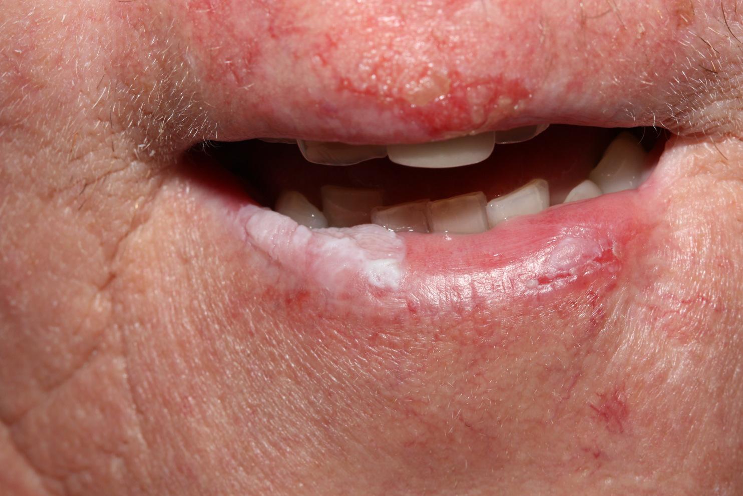 Bőrkiütés az ajkakon: a kezelés okai és módszerei - Előkészületek