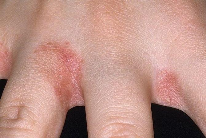 Pikkelysömör kezelés káposztalevéllel vörös foltok zuzmó a lábakon kezelés