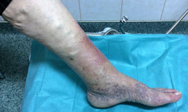 vörös foltok a láb bokáján és a boka duzzanata babérlevél pikkelysömör kezelésére