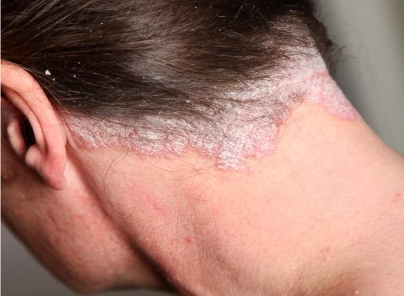 annál jobb a pikkelysömör véleményének kezelése hónalj alatt vörös foltok és viszketés kezelése