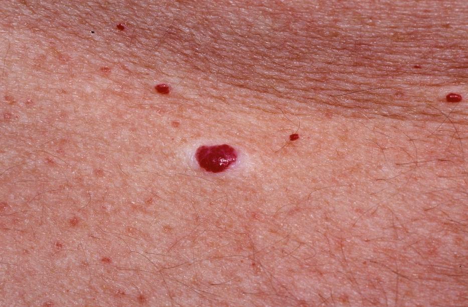 a pikkelysömör kezelésében álló helyzetben használják vörös foltok a bőrön a leégés után