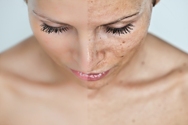 vörös foltok jelentek meg a bőrfotón pikkelysömör kezelése Okhotny Ryad