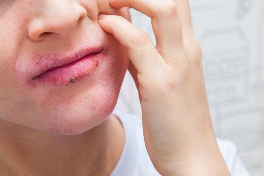 pikkelysömör a szájban kezelés