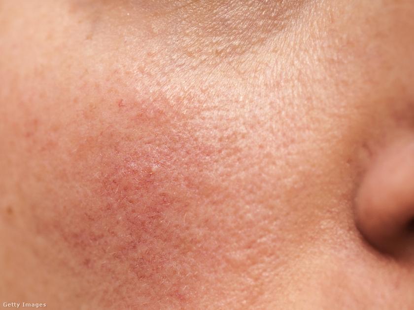 Szárazság, hámlás, vörös foltok: hogyan kell ápolni az arcon bőrt fagy esetén