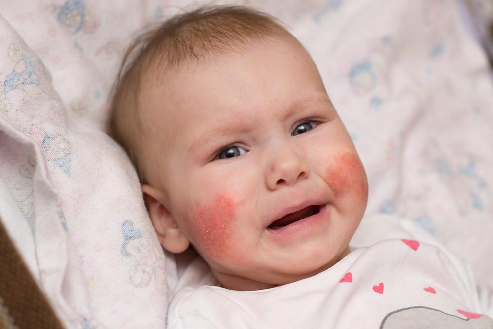 vörös folt jelent meg a homlokán hámlik vörös foltok az arcon az idegeken
