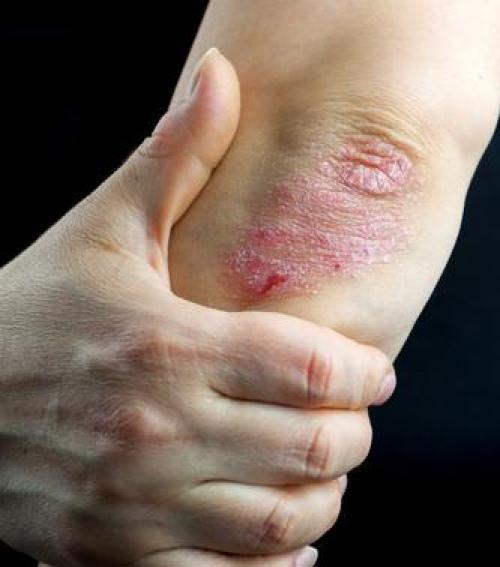 pikkelysömör kórház a lábán vörös foltok a láb megduzzad