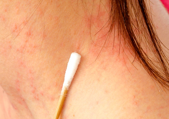 vörös foltok a nyakon hogyan kell kezelni