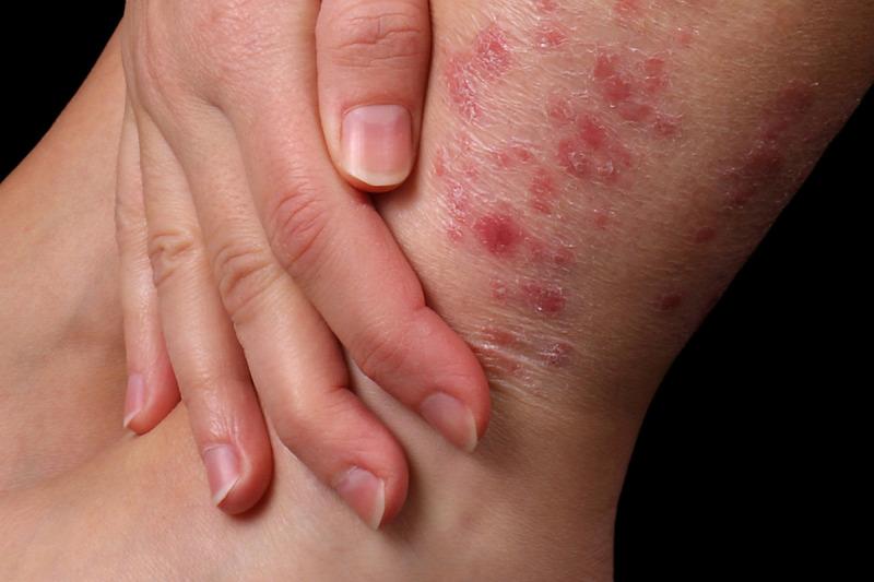 pikkelysömör mi ez a betegség és hogyan kell kezelni vörös foltok jelentek meg a hónalj kezelés alatt