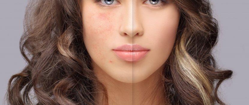 babérlevél pikkelysömör kezelésére vörös pikkelyes folt az arcon a szem alatt