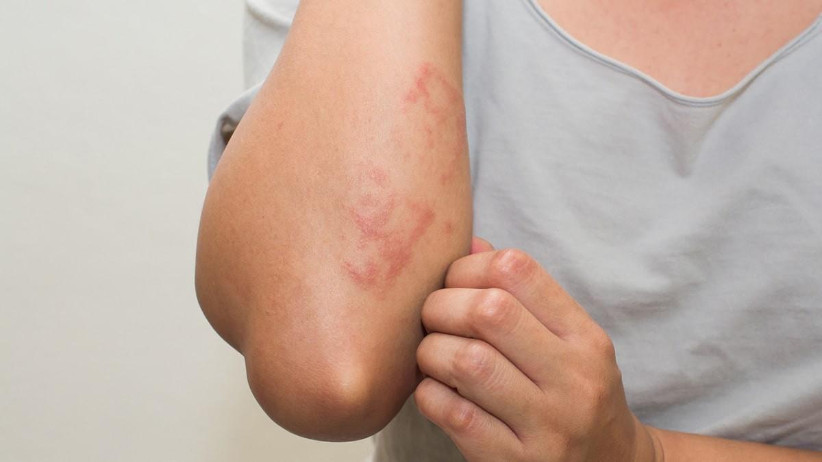 bőrkiütés vörös foltok formájában a kezeken krém akerat 30 pikkelysömör vélemények